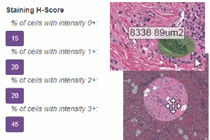 Made for pathologists - H-Score, measurements, eyepiece